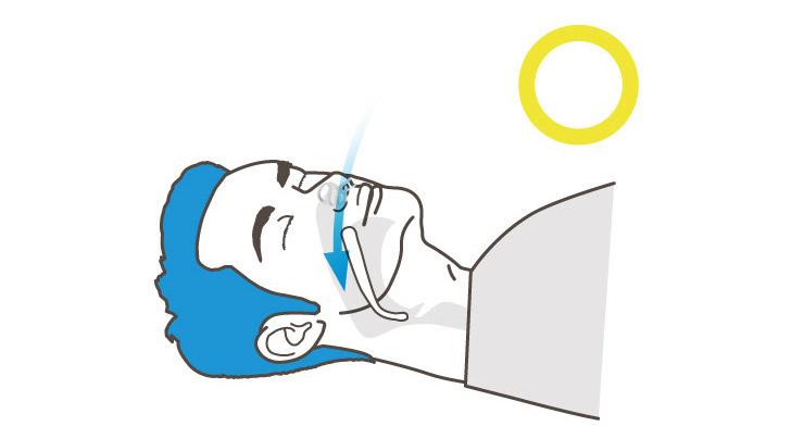 Dr.Breath-鼻腔擴張止鼾器-適用範圍